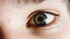 Image 2 | Optic Dimension