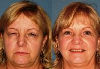 Arizona Eye Institute & Cosmetic Laser Center| Sun City West, AZ