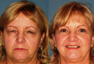 Arizona Eye Institute & Cosmetic Laser Center	| Sun City West, AZ