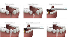 Image 6 | Elevated Oral & Implant Surgery, P.C.