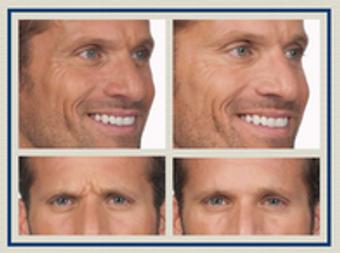 Image 4 | Facial Aesthetics