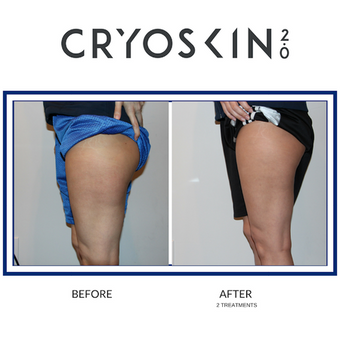 Cryoskin is a great treatment for cellulite reduction.