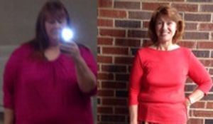 Before and After - Gastric Bypass