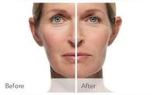 Image 2 | The Natural Look MedSpa