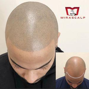 Image 7 | Mirascalp
