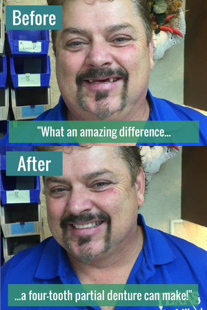 What an amazing difference a four-tooth partial denture can make!