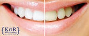 Image 2 | Smile Dentistry