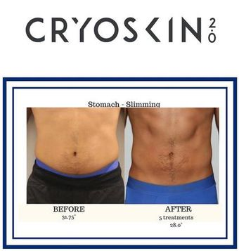 Cryoskin is a slimming and toning treatment. A great alternative to liposuction and non surgical face lift. No downtime, no pain, very effective.