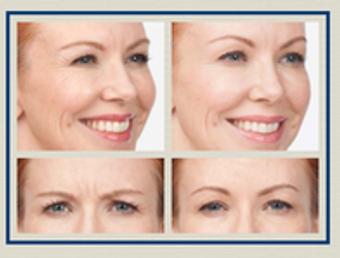 Image 6 | Facial Aesthetics