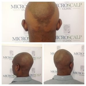 Scalp micro pigmentation  http://www.microscalpclinic.com/