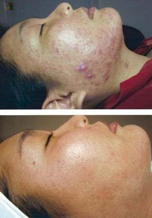 Image 4 | Face Reality Acne Clinic
