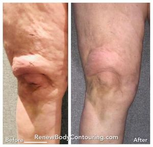 Image 2 | Renew Body Contouring