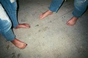 Toe Nail Issues Crooked Toe