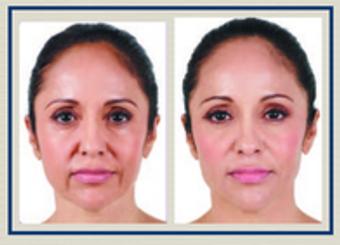 Image 3 | Facial Aesthetics