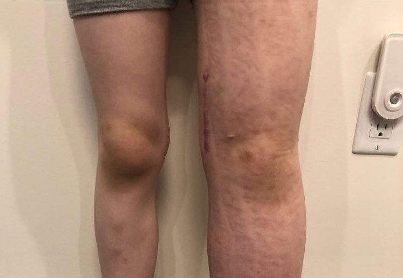 8-year-old Tristan Tocila's legs. Tristan was born with a rare condition called primary lymphedema which currenlty has no cure.