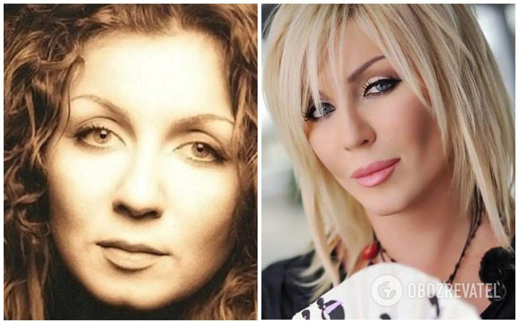 Ирина Билык до и после пластических операций.