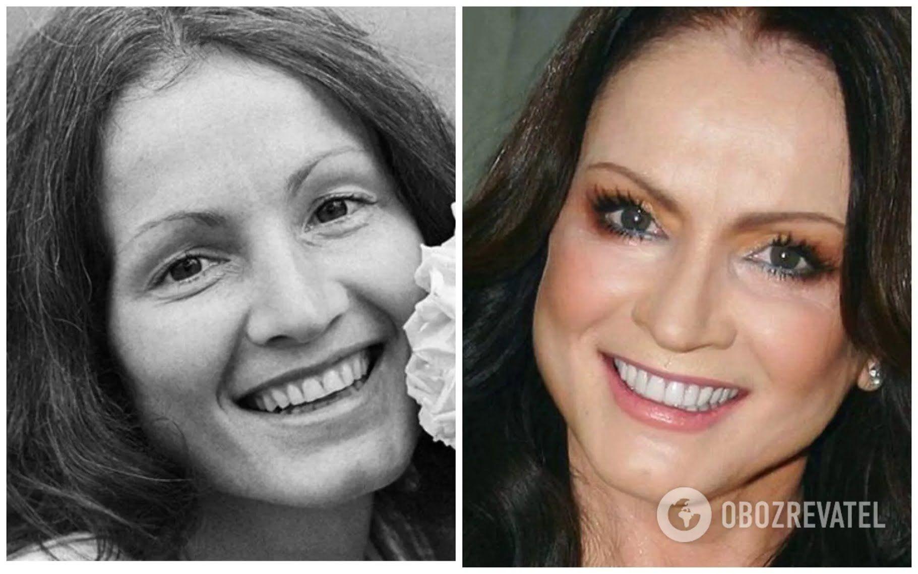 София Ротару до и после пластических операций.