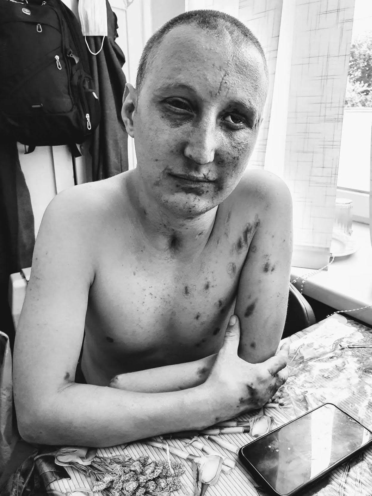 Лікування Віталія після поранення триває вже 5 місяць. За цей час він жодного разу не був вдома