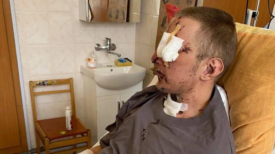 Внаслідок вибуху хлопець втратив ліве око і кисть руки. За праву руку і можливість бачити на вціліле око лікарям довелося боротися
