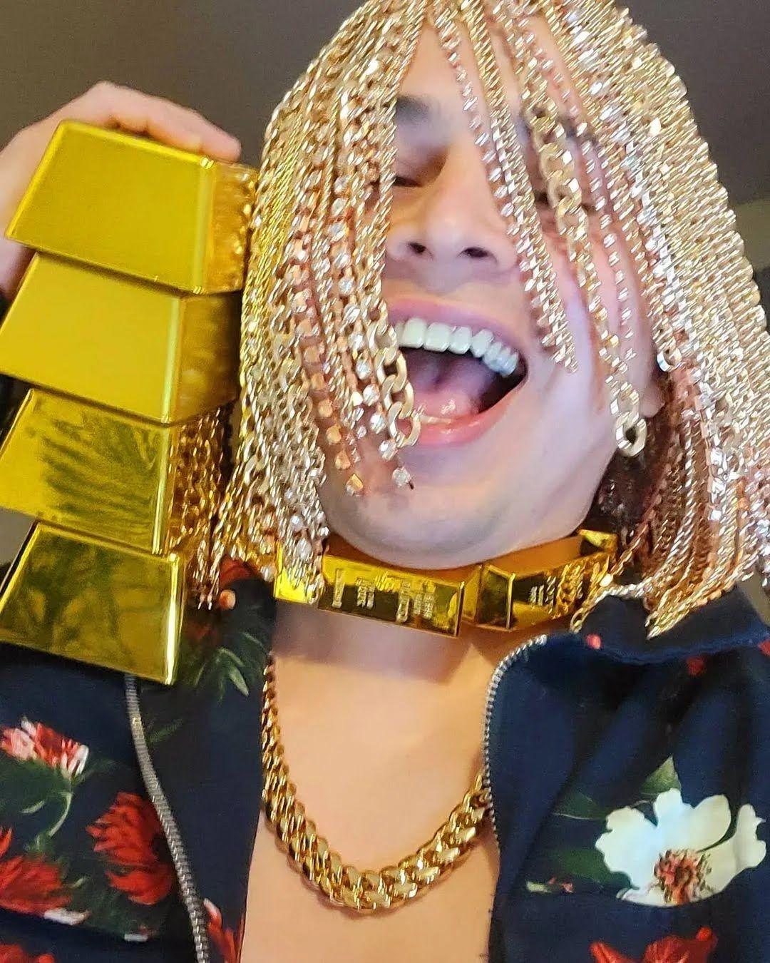 Dan Sur імплантував золоті ланцюги в голову.