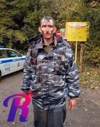 Отец детей после происшествия .