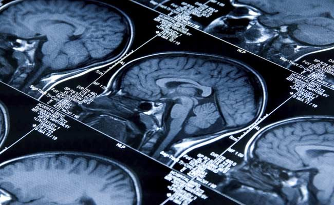 World Brain Day 2021: Theme, History And Significance