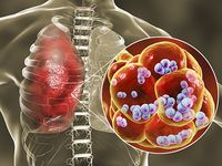 S. pneumoniae sticks to dying lung cells, worsening secondary infection following flu