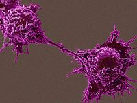 Phosphoprotein biomarkers to guide cancer therapy are identified