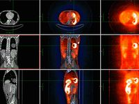 Drug-delivery microcapsules tagged with zirconium-89 can be tracked by PET imaging