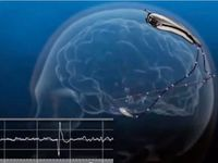 New device to control seizures proving its worth