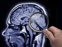 New Alzheimer's drug not a panacea, but may slow worsening of the disease