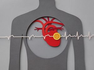 Heart attack recovery aided by injecting heart muscle cells that overexpress cyclin D2