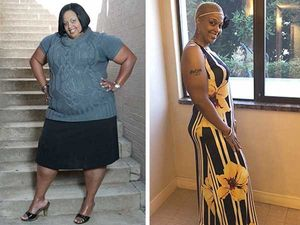 Bariatric surgery is effective under the right circumstances