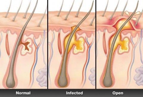 [Image: folikulitis.jpg]