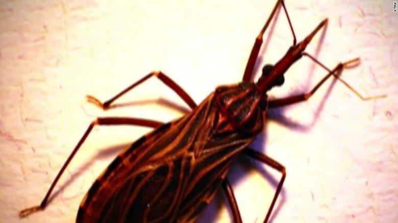 [Image: 151124084911-kissing-bug-chagas-united-s...ge-169.jpg]