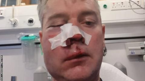 Referee's jaw broken in 'appalling' attack after amateur game in Irelandの代表サムネイル