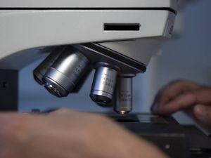 Tumori aggressivi, meno movimento delle cellule limita le metastasi