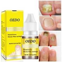 OEDM Nail Liquid Treatment