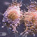 Електромагнетните полиња можат да помогнат во спречување на ширењето на клетките на ракот на дојка