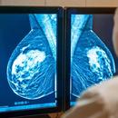 Фарбите за коса го зголемуваат ризикот од рак на дојка