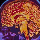 Ковид-19 поврзан со ризик од ментални болести и мозочни нарушувања