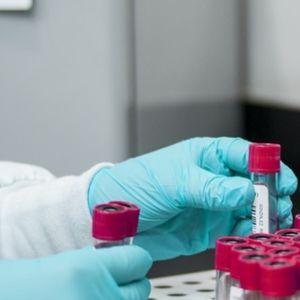 Нови 151 случая на зараза с коронавирус за денонощие в Гърция