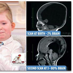 Дете родено со само 2% од мозокот! За неверување е она што се случило по четири години! Видео