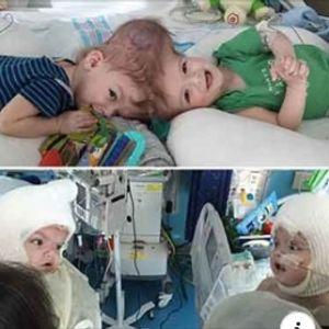 Почина докторот кој во 27 часовна операција одвои сијамски близнаци споени со главите (ФОТО)