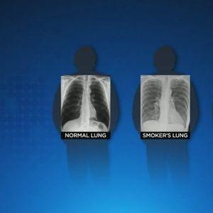 Белите дробови кај пациентите кои прележале Ковид 19 се во полоша состојба од тие на пушачите