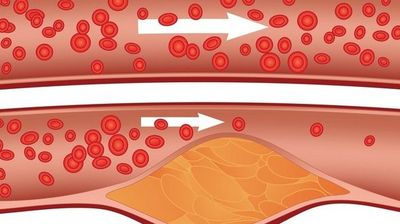 7 опасни знаци за блокирани артерии што често ги игнорираме