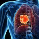 Загадувањето на воздухот може да го оштети секој орган во телото