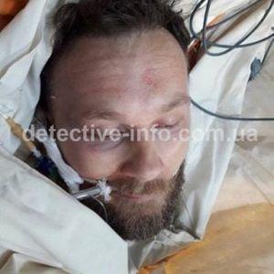 Објавени слики од повредениот водач на кавачкиот клан и неговата сопруга која излегла да го брани со пиштол