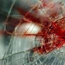 Малолетен пешак од Скопје тешко повреден по удар од патничко возило