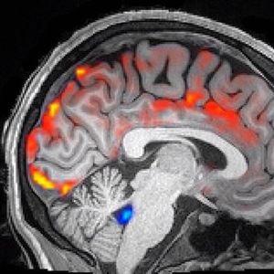 Центрифуга: Перење на мозокот